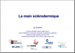 La main sclerodermique Luc Mouthon