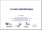 La main sclerodermique Luc Mouthon