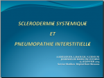 Sclerodermie et pneumopathie interstitielle. A.KHELIOUEN