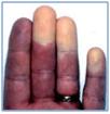 Fig. 2- Dysfonctionnements vasculaires précoces dans la SSc