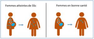 Fig. 4- Persistance à long terme du Mc foetal