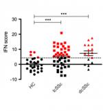 Distribution du score « Interféron de type I » (IFN score) chez les patients atteints d'une sclérodermie cutanée limitée (lcSSc) ou diffuse (dcSSc) versus des contrôles sains (HC). Les cas positifs sont en rouge.
