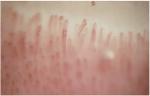 capillaroscopie