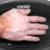 Un essai contrôlé, randomisé, de bains de cire en thérapie complémentaire à des exercices de la main chez des patients atteints de sclérodermie